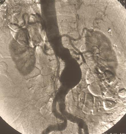 präoperativen stents pankreascarzinom